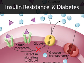 Insulin Resistance and Diabetes Medical Lectures